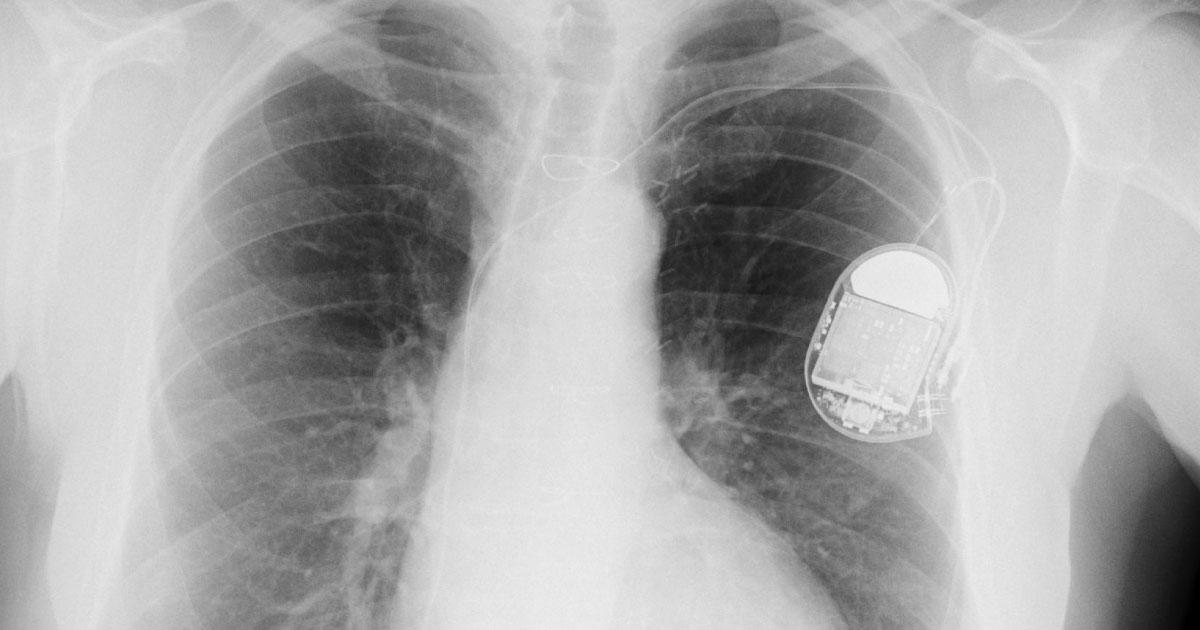 Startup Jackstat Med | Riduzione degenza e rischi post-operatori | Device cardiaci (pacemaker e defibrillatori)
